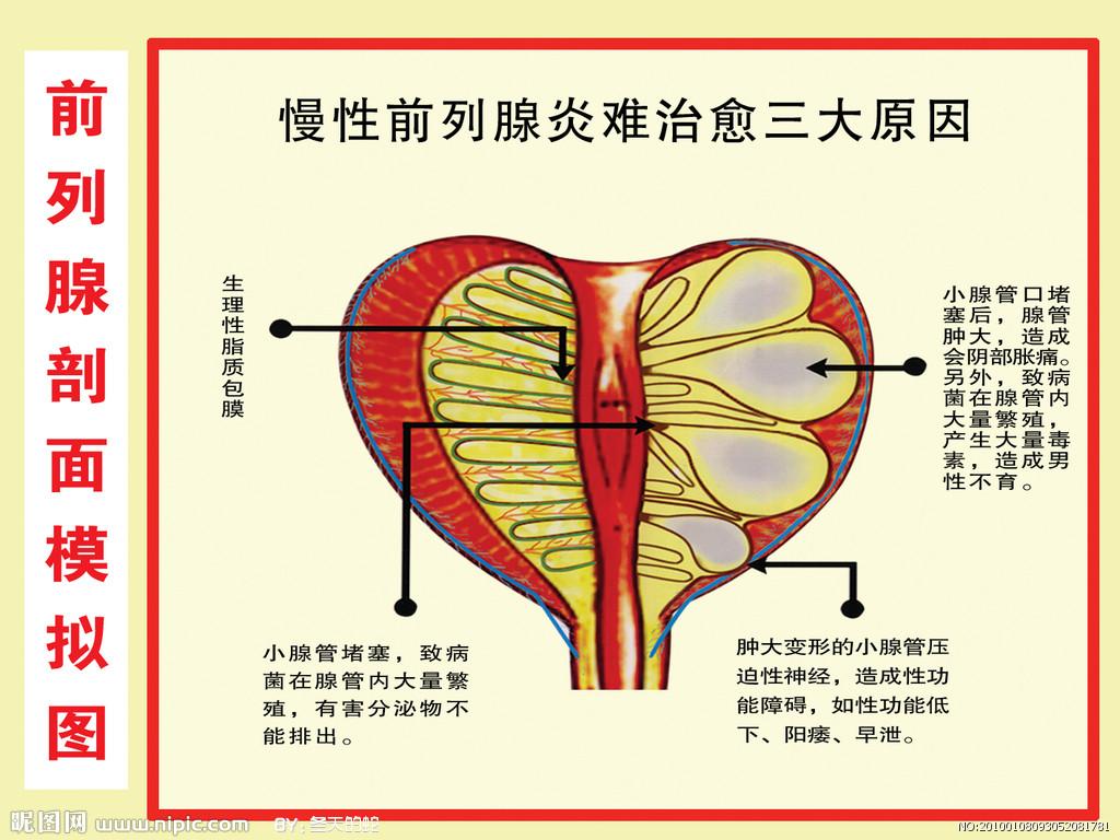 前列腺的位置在哪里_治疗前列腺炎难在哪里-郑州天伦医院